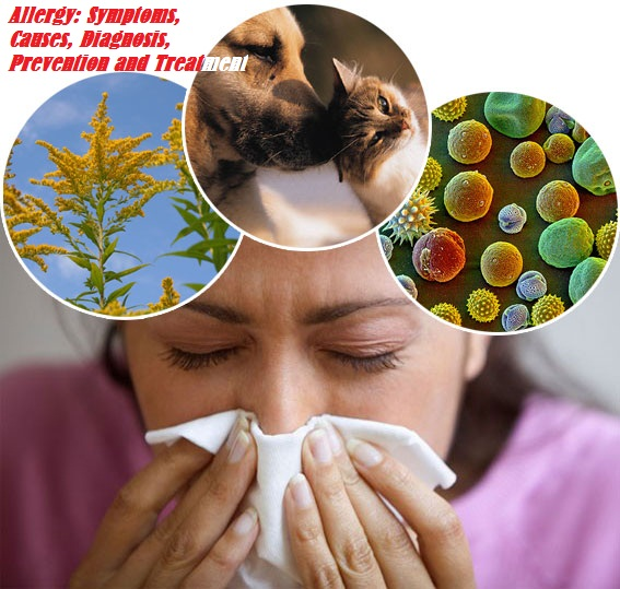 Allergy: Symptoms, Causes, Diagnosis, Prevention and Treatment