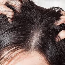 How to Get rid of Dandruff ( Easy & Effective Natural Remedies)