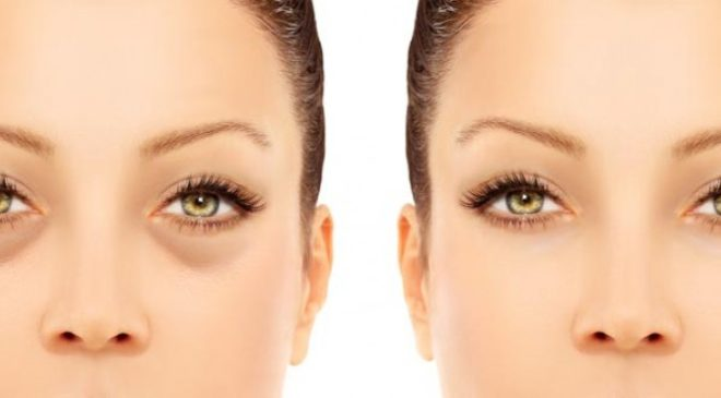 FAST WAYS TO REMOVE DARK CIRCLES WITH NATURAL REMEDIES
