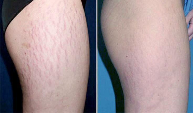 AVOID STRETCH MARKS WITH THESE 5 TIPS