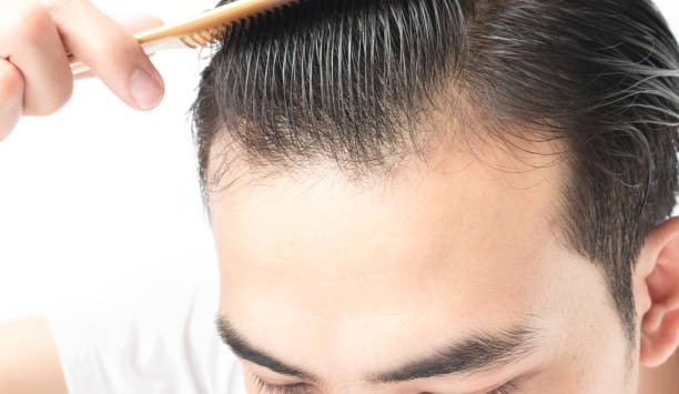 The Right Way To Wash Your Hair: Things To Know